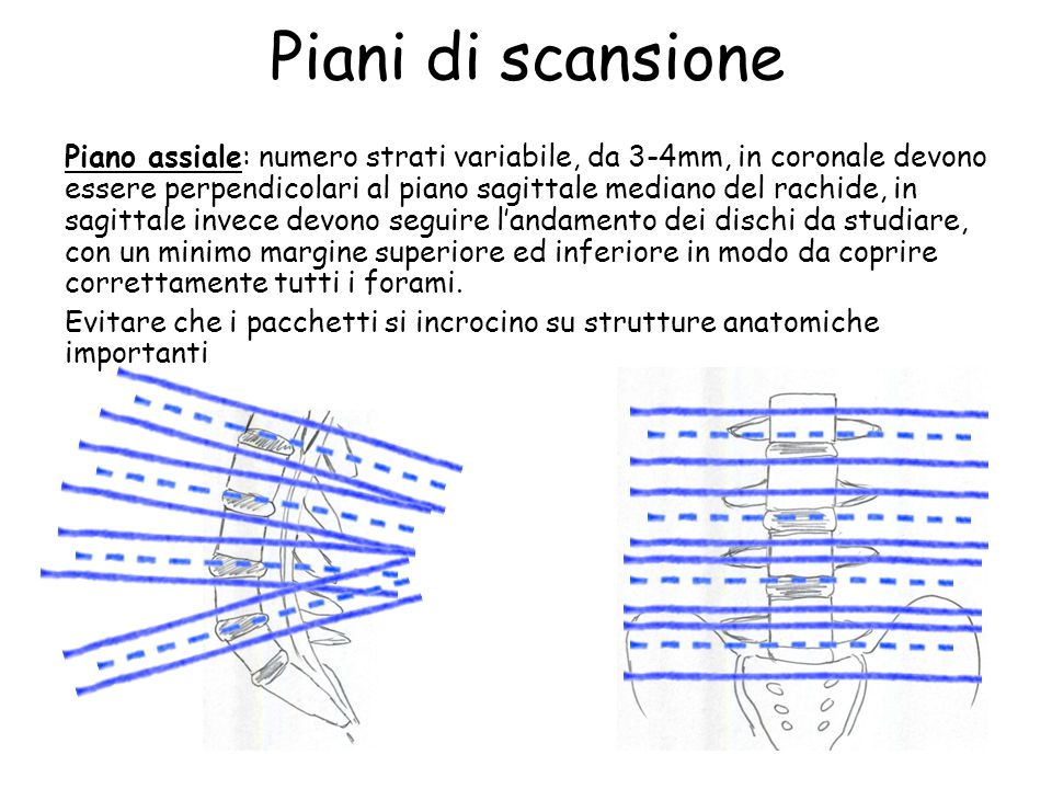 Piani di scansione Piano assiale: numero strati variabile, da 3-4mm, in coronale devono essere perpendicolari al piano sagittale mediano del rachide,