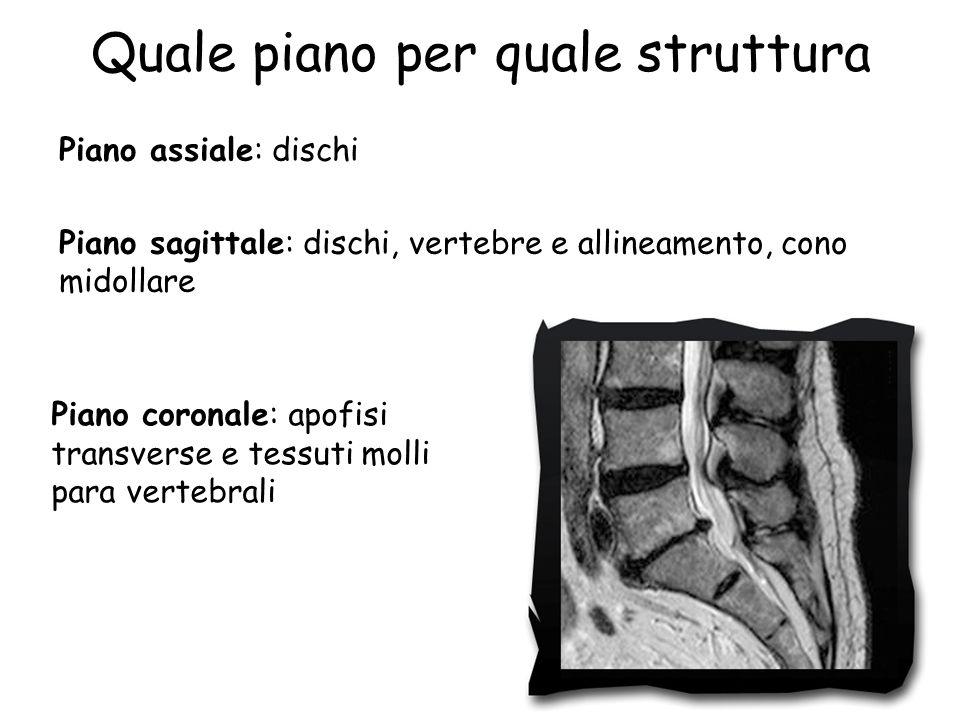 Quale piano per quale struttura Piano assiale: dischi Piano sagittale: dischi, vertebre e allineamento, cono midollare Piano coronale: apofisi transve
