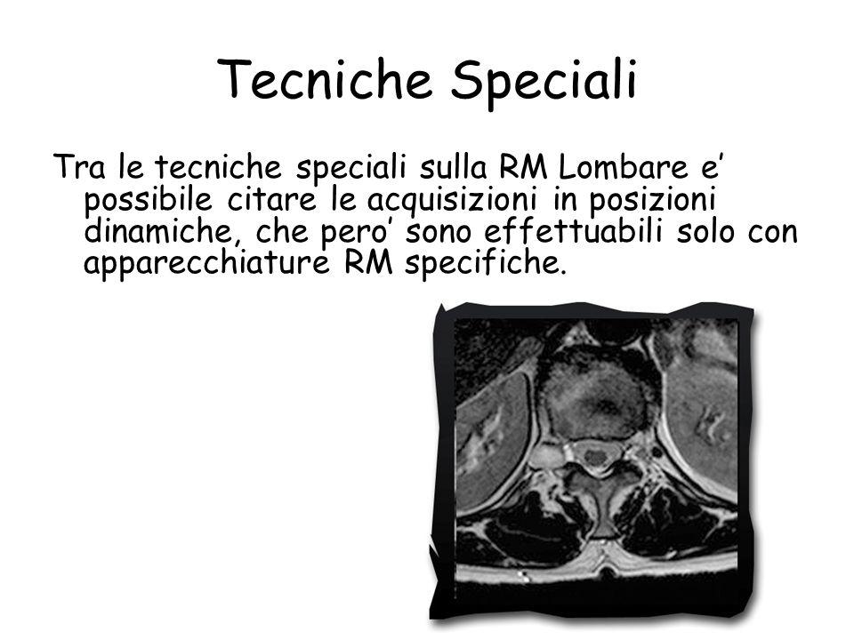 Tecniche Speciali Tra le tecniche speciali sulla RM Lombare e' possibile citare le acquisizioni in posizioni dinamiche, che pero' sono effettuabili so