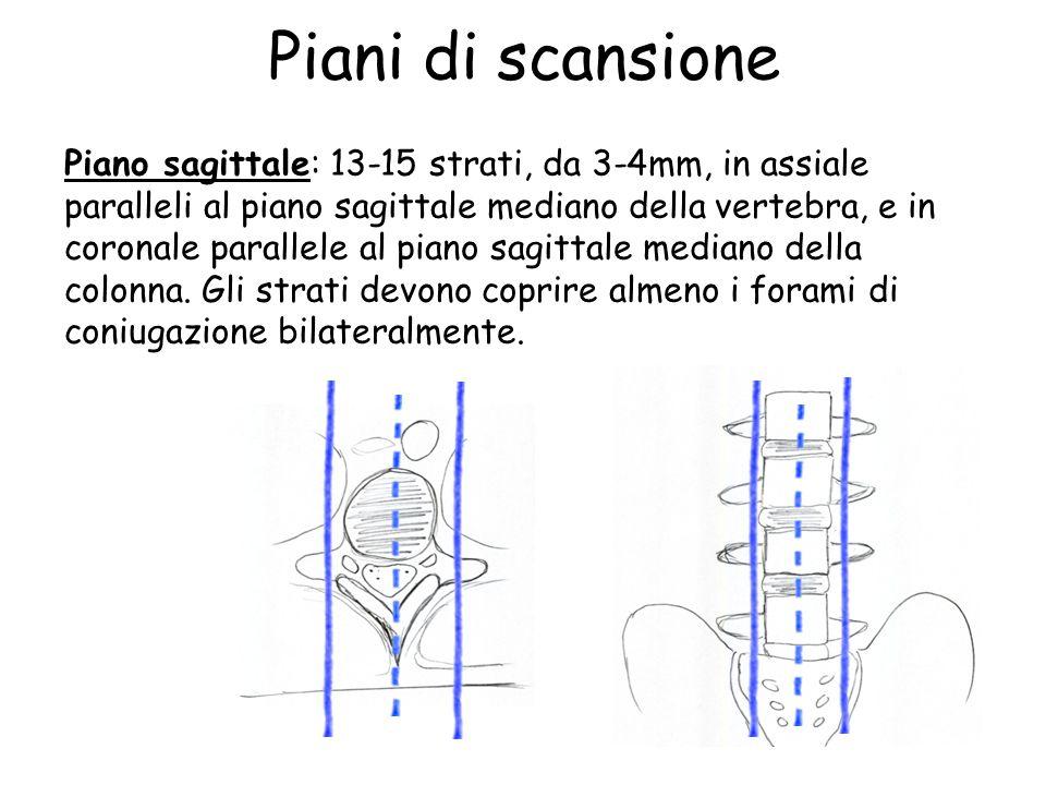 Piani di scansione Piano sagittale: 13-15 strati, da 3-4mm, in assiale paralleli al piano sagittale mediano della vertebra, e in coronale parallele al