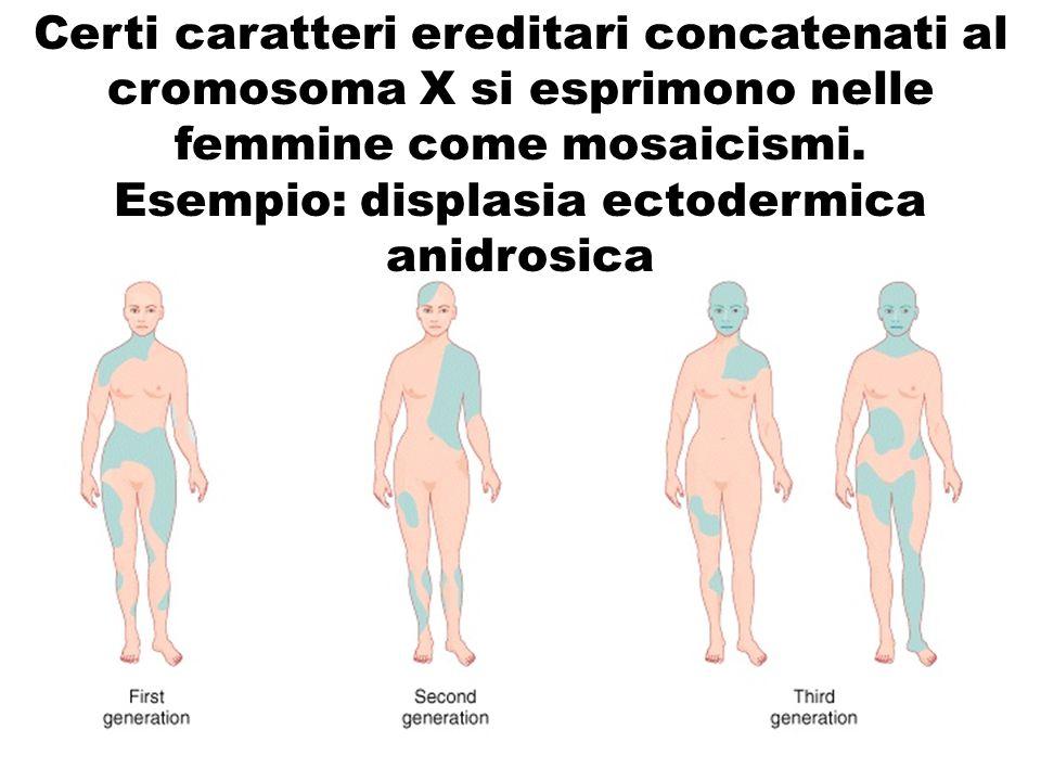 Certi caratteri ereditari concatenati al cromosoma X si esprimono nelle femmine come mosaicismi. Esempio: displasia ectodermica anidrosica