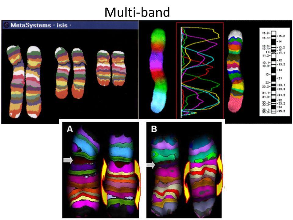 CGH (Comparative genomic Hybridization ) Il DNA da studiare è marcato con un fluorocromo ed ibridato con un campione di DNA normale di controllo marcato con un diverso fluorocromo.