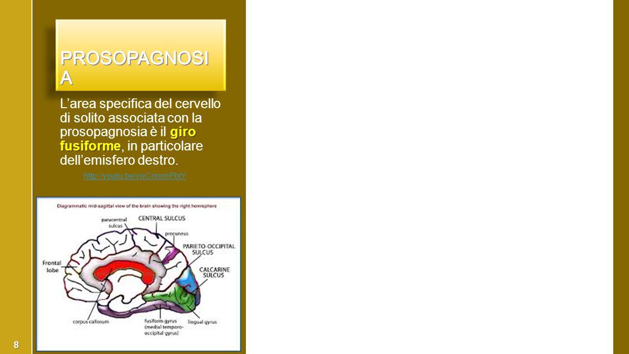 giro fusiforme L'area specifica del cervello di solito associata con la prosopagnosia è il giro fusiforme, in particolare dell'emisfero destro. http:/