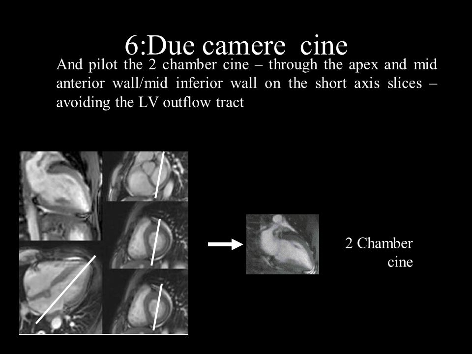 6:Due camere cine 2 Chamber cine And pilot the 2 chamber cine – through the apex and mid anterior wall/mid inferior wall on the short axis slices – avoiding the LV outflow tract