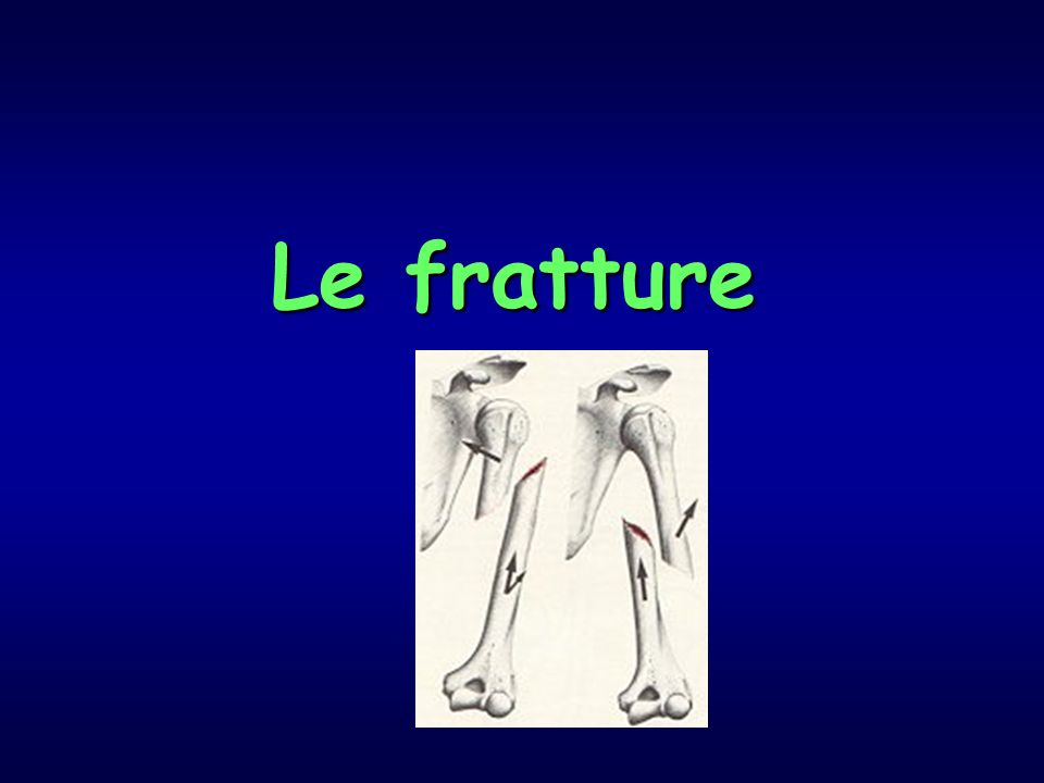 Le fratture