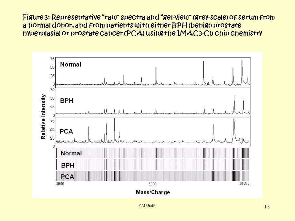 AM-UniMi 15 Figure 3: Representative raw spectra and gel-view (grey-scale) of serum from a normal donor, and from patients with either BPH (benign prostate hyperplasia) or prostate cancer (PCA) using the IMAC3-Cu chip chemistry