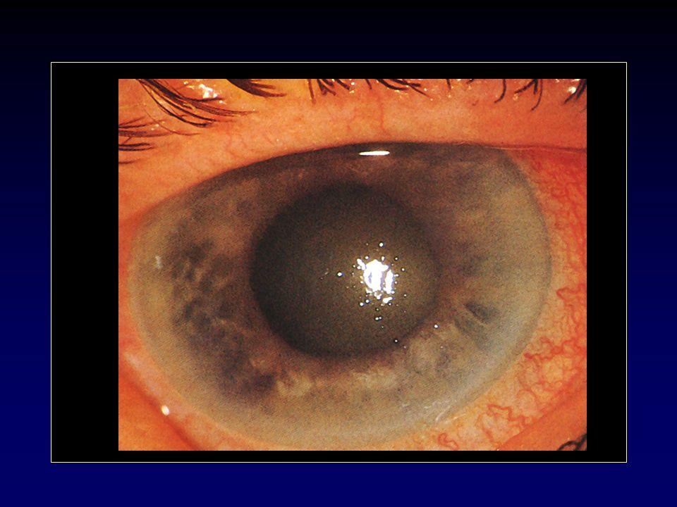 8c38d9f56 Emergenza Acuto o graduale Occhio rosso Dolore (nausea, vomito) Visione  offuscata Passaggio luce-buio CA di profondità ridotta, media-midriasi  Contatto ...